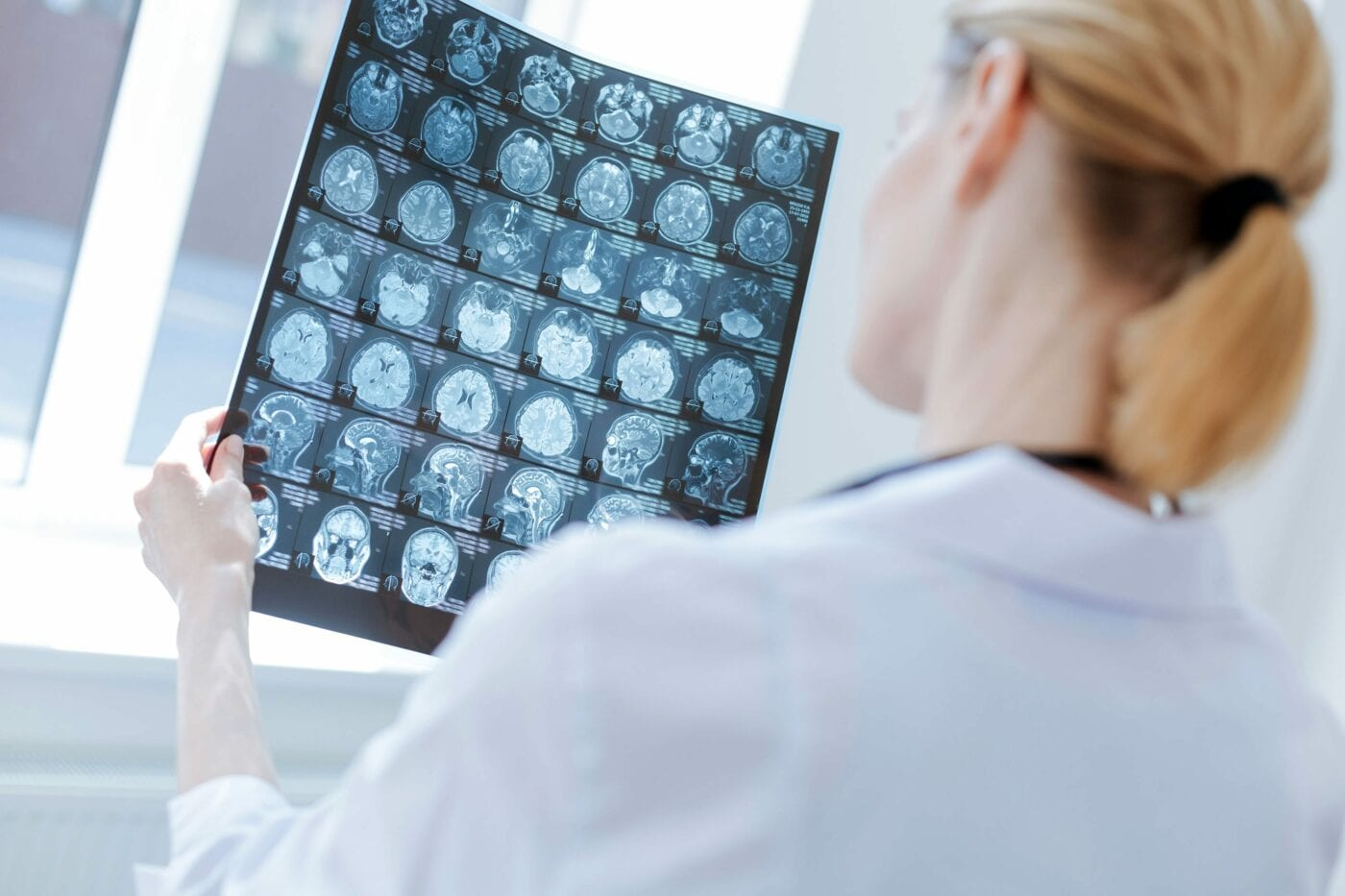 Involved neurosurgeon examining roentgen brain results at the laboratory